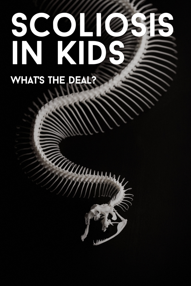 Scoliosis in Kids